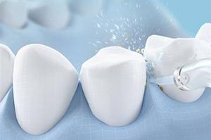 两种类型冲牙�器 你pick哪一款?