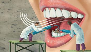 """每天都刷牙还要用冲牙器?冲牙器是不是""""鸡肋""""?"""